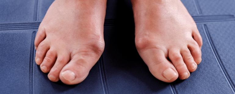 علاج إبهام القدم الأروح بالينزة العلاج الطبيعي ببرلين ميت